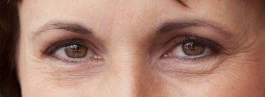 ¿Cómo atenuar las arrugas de los ojos de forma natural?