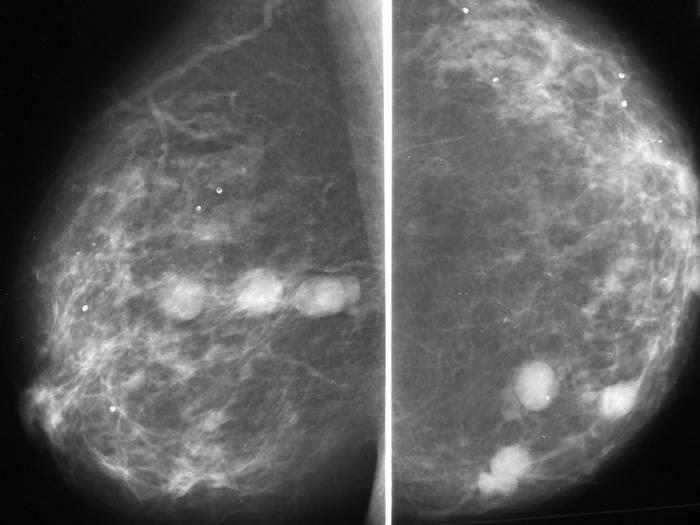 Fibroadenoma en mujeres mayores de 50 años