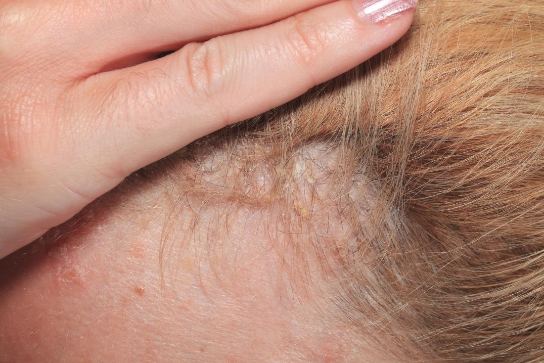 Resultado de imagen de psoriasis